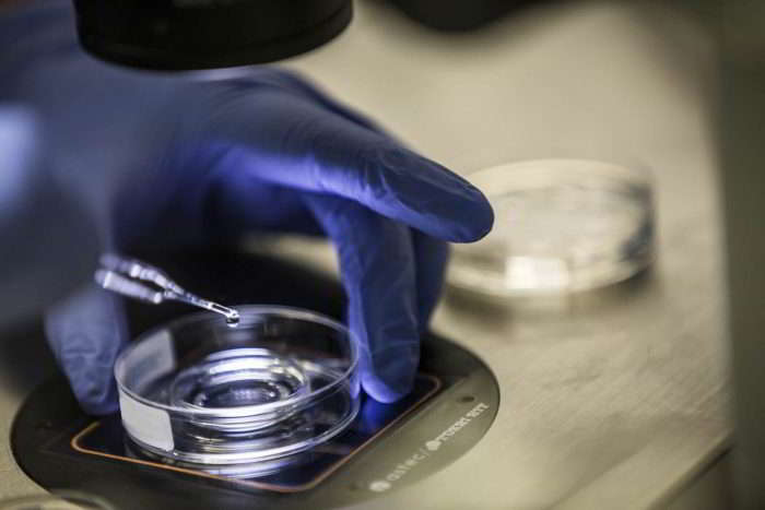 Oocyte retrieval and laboratory