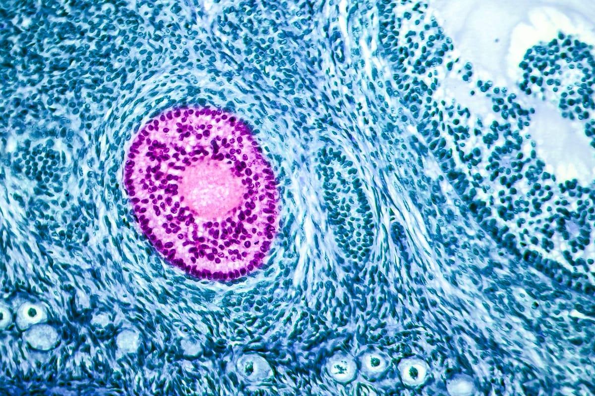 DuoStim: the IVF stimulation protocol designed for low ovarian reserves